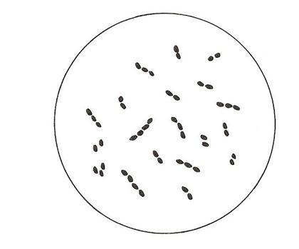treptococcus Lactis