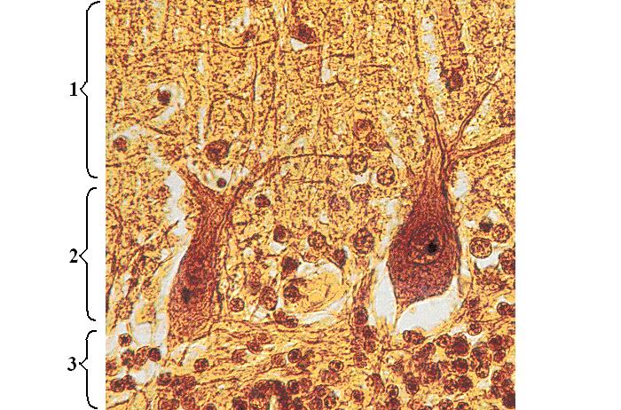 Клетки Пуркинье фото